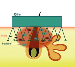 IPL光治療マシンセレックの特徴